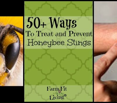 50+ Ways to Treat Honeybee Stings From Over 100 Beekeepers