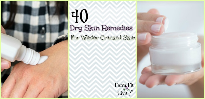 Dry Skin Remedies for Winter Cracked Skin
