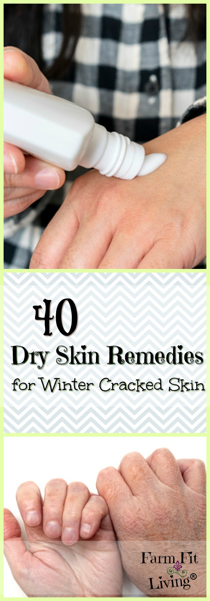 Are you looking for #dryskin remedies from the #winter cold? Here are 40 tried and true products for healing and treating winter dry skin.